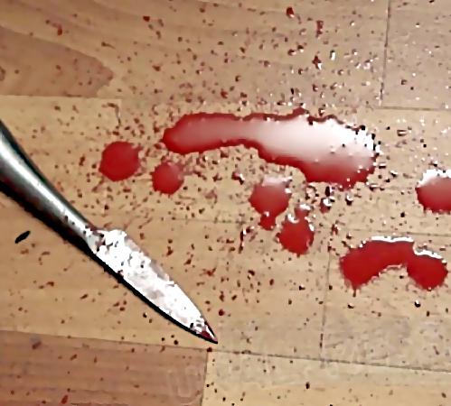 ВЛенинском районе 65-летнего мужчину нетрезвый сосед ударил ножом