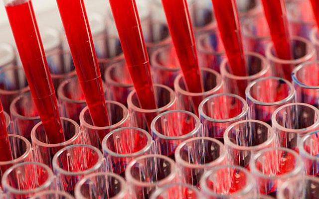 Учеными открыт способ омоложения крови