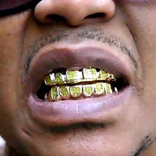 К чему снится золотые зубы у мужчин