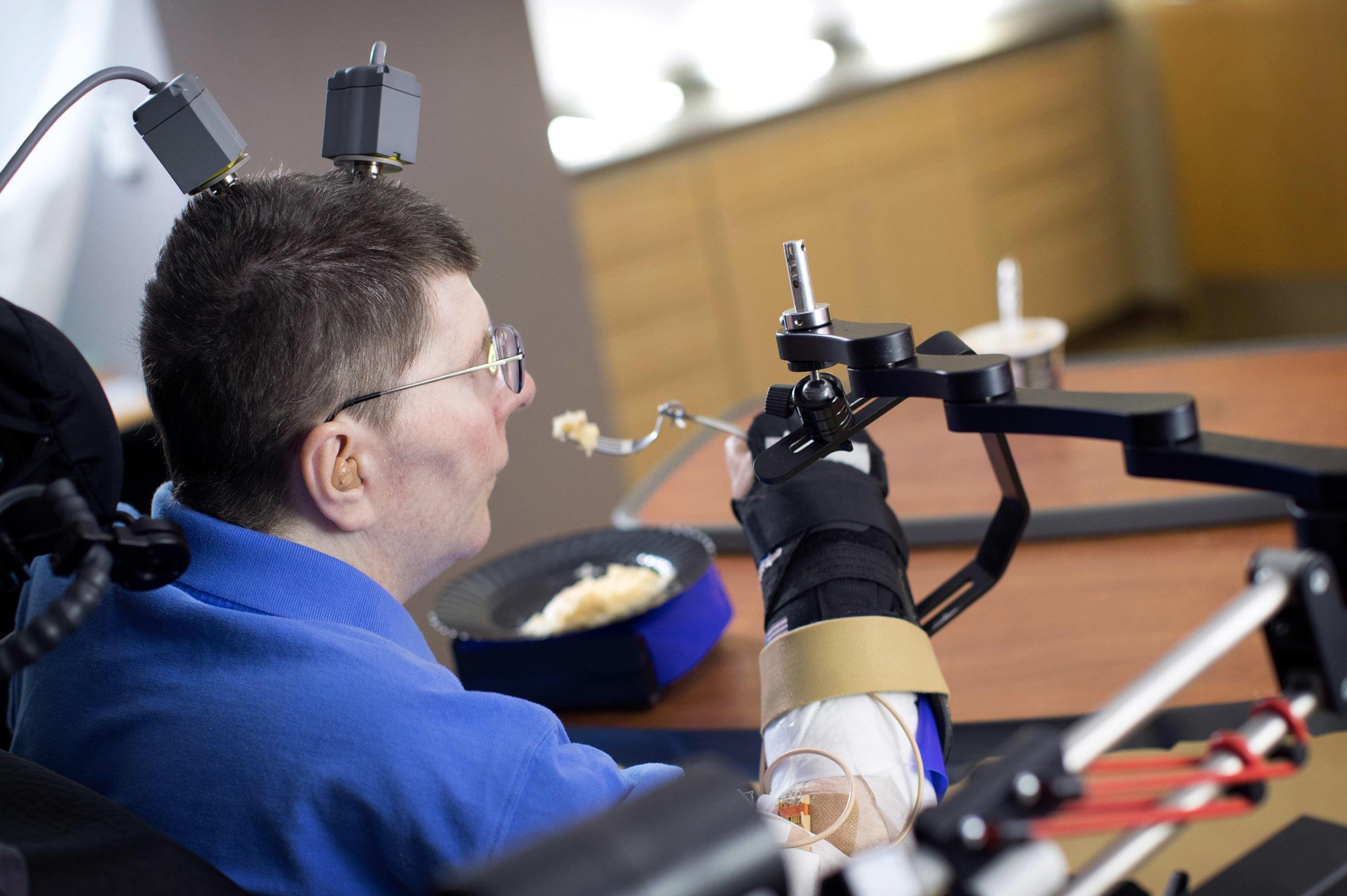 Новые технологии позволили парализованному человеку двигать рукой