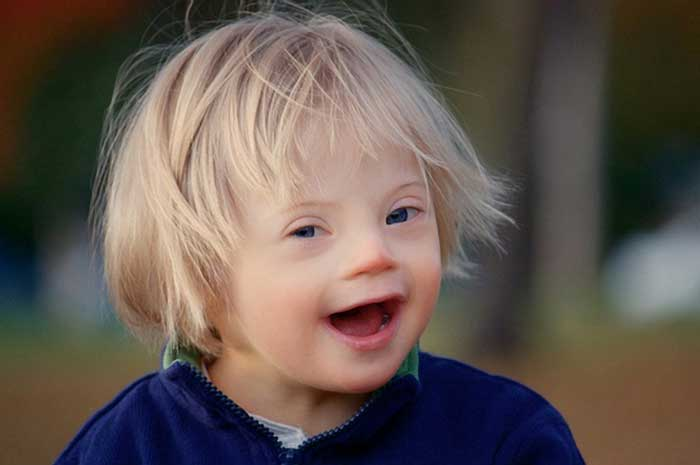 Ученые определили, почему дети появляются ссиндромом Дауна
