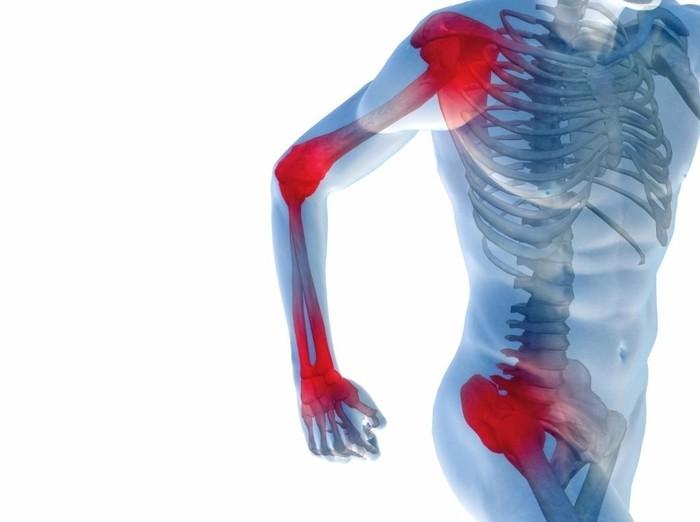 Боли вмышцах икостях появляются из-за дефицита витамина D— Ученые
