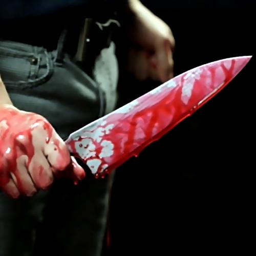 Вмосковском кафе гость  получил ножевое ранение