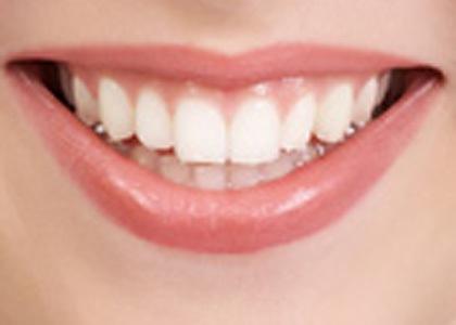 Ученые узнали, как зубы влияют насексуальную привлекательность