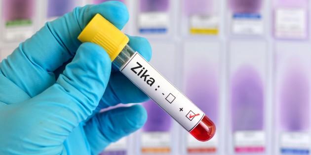 Китайские учёные разработали вакцину отвируса Зика